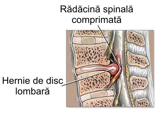 varicoză din cauza problemelor cu coloana vertebrală)